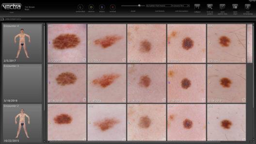 Software que se usa para monitorear el crecimiento de los lunares y lesiones en la piel. Cortesia de Canfield Scientific.